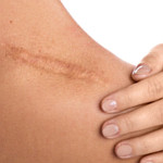 aroeira cicatrizante